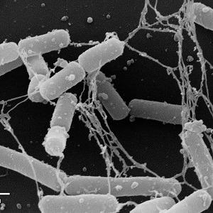 インフルエンザ予防に効果 京漬物から発見された「ラブレ菌」のパワーを知る