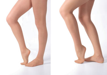 膝の裏をのばすとキレイ(左)、膝の裏が伸びていないとおしりがさがってしまいます(右)