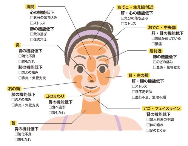 ニキビ 場所 意味 ニキビのできる場所には意味があった! おでこ、頬、小鼻、口元できやすい原因やニキビの種類を女医が解説!